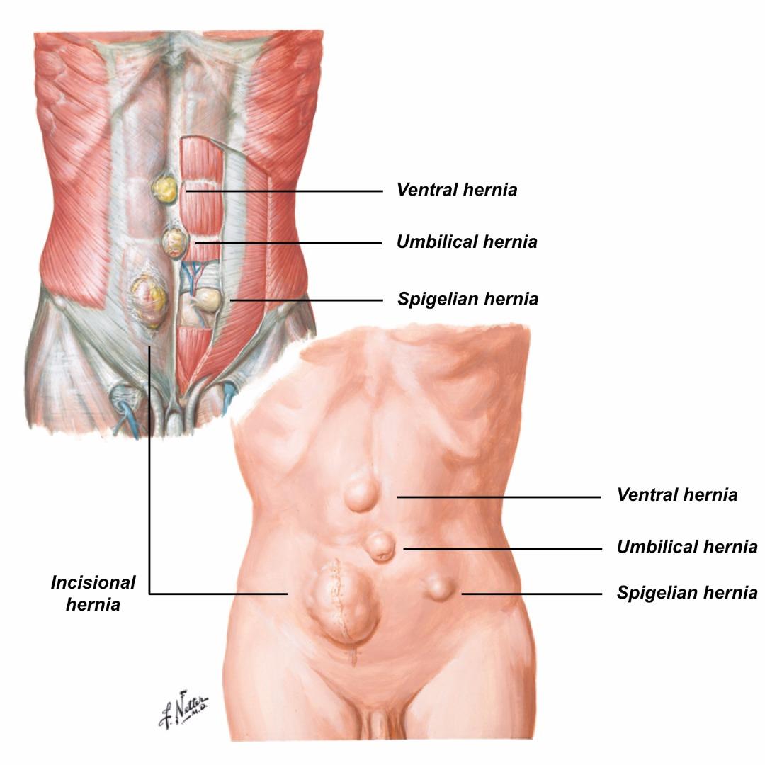 Hernias | Shahab Siddiqi, Colorectal Surgeon